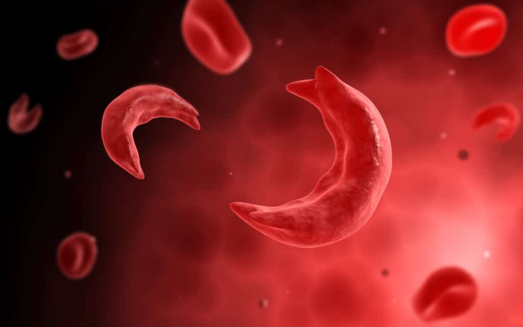 Sickle Cell Anemia – A Very Fortunate Series Of Events